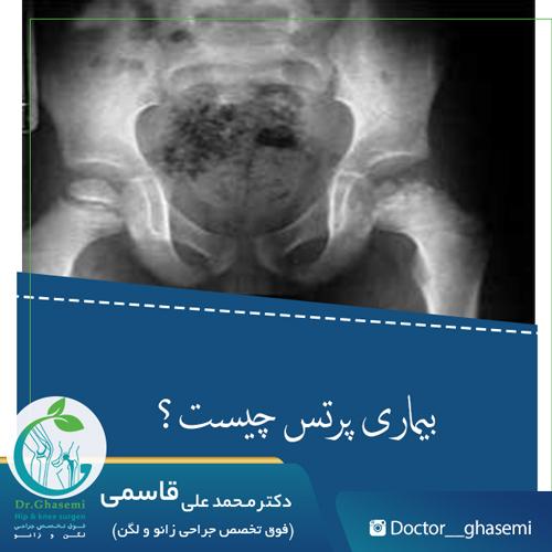 بیماری پرتس چیست؟
