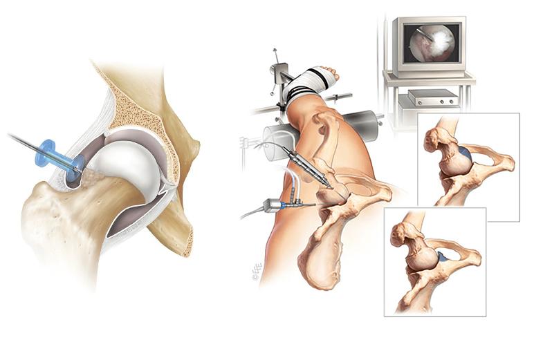 ارتروسکوپی هیپ برای برداشتن استخوان اضافه در سندروم گیر افتادگی هیپ