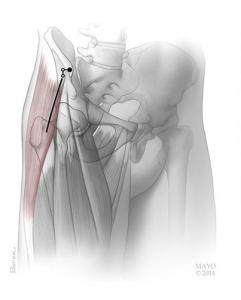انسزیون تعویض مفصل به روش کم تهاجمی