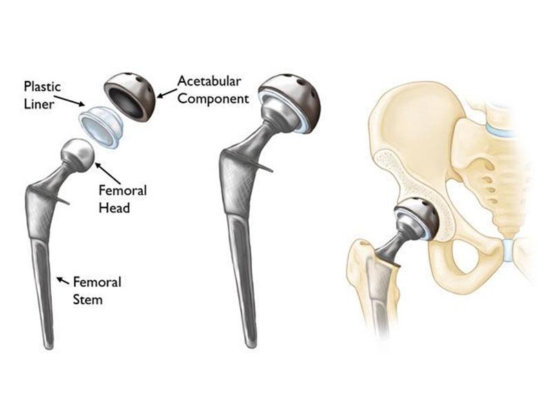 تعویض مفصل لگن به روش کم تهاجمی (دایرکت انتریور)