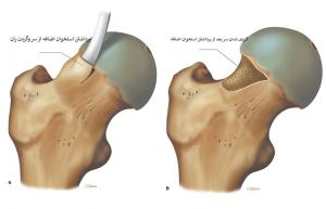 جراحی باز گیر افتادگی سر استخوان ران