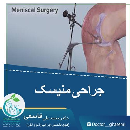 جراحی منیسک