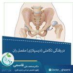 دررفتگی تکاملی (دیسپلازی) مفصل ران