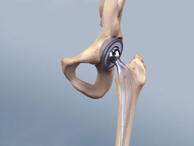اقدامات بعد از جراحی تعویض مفصل لگن
