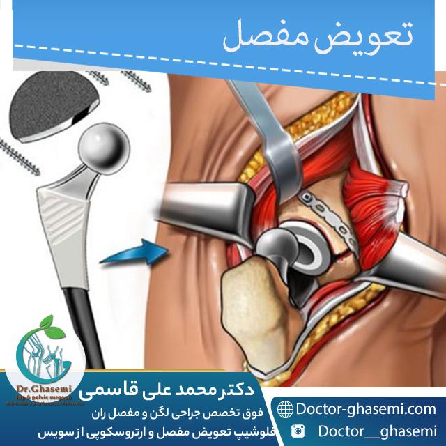 تعویض مفصل لگن بعد از عفونت