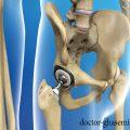 عفونت در تعویض مفصل