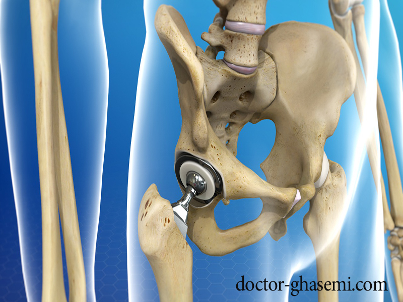 ممکن است مفصل مصنوعی دچار عفونت شود؟