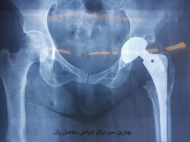 سن در جراحی تعویض مفصل ران مهم است!!