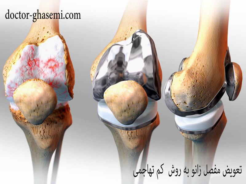 تعویض کامل مفصل زانو با کمترین میزان تهاجم